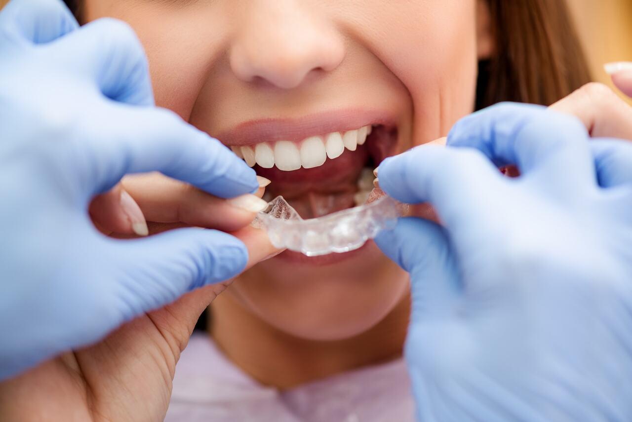 Cuál es la mejor ortodoncia para adultos