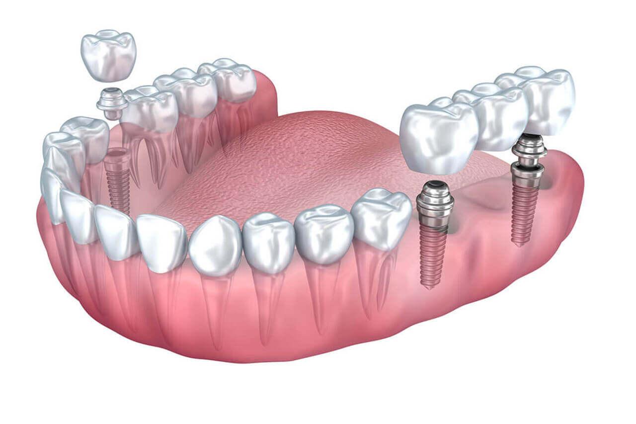 Implantes de carga inmediata: ventajas y desventajas