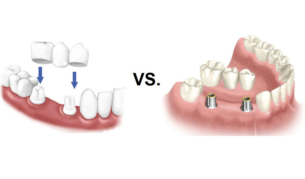 Implantes dentales o puentes. ¿Cuál es mejor para mí?