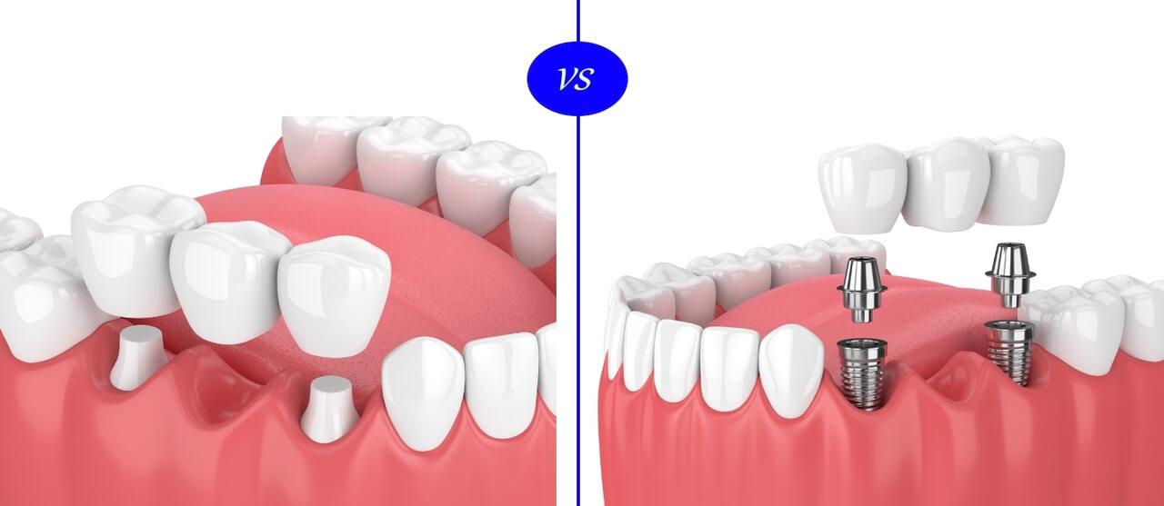 Implantes dentales vs. puentes