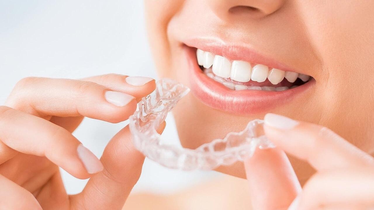 Invisalign: ortodoncia invisible de última generación