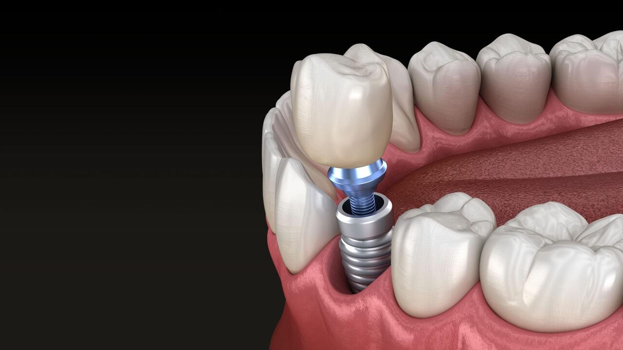 Precio de estos implantes dentales