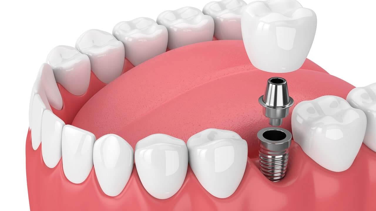 Qué son los implantes dentales de carga inmediata