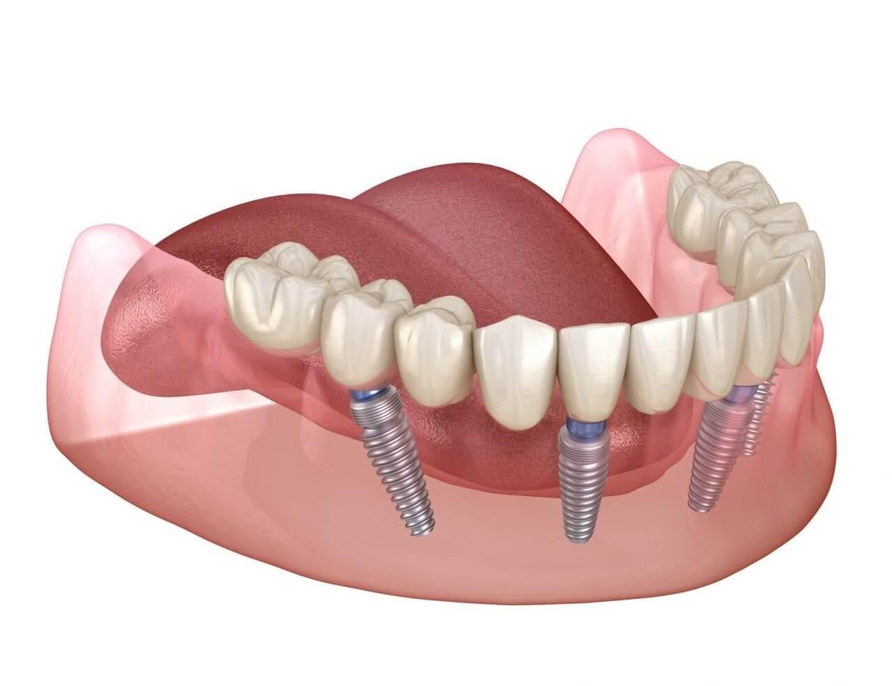 Problema con los implantes dentales de carga inmediata