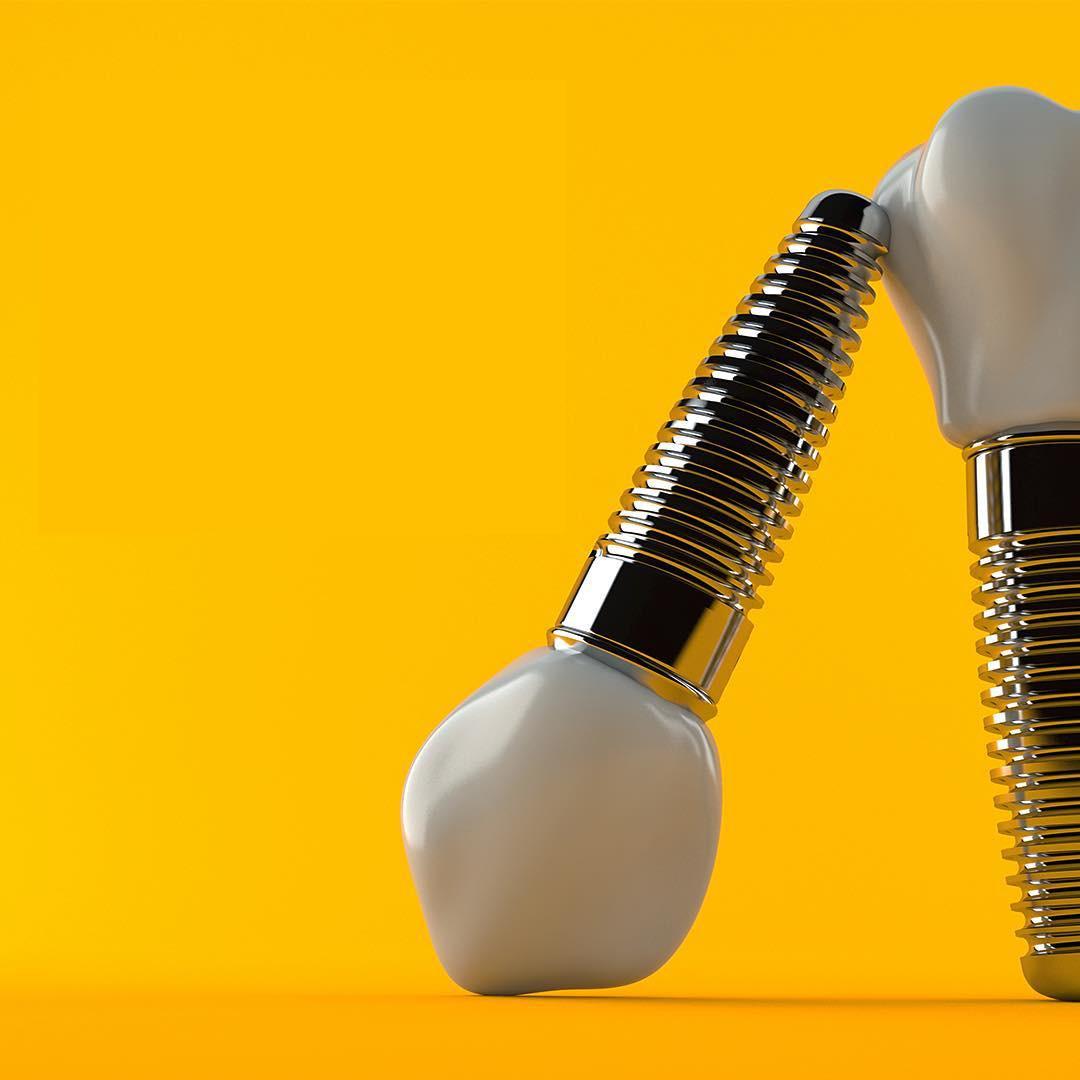implantes de titanio o zirconio