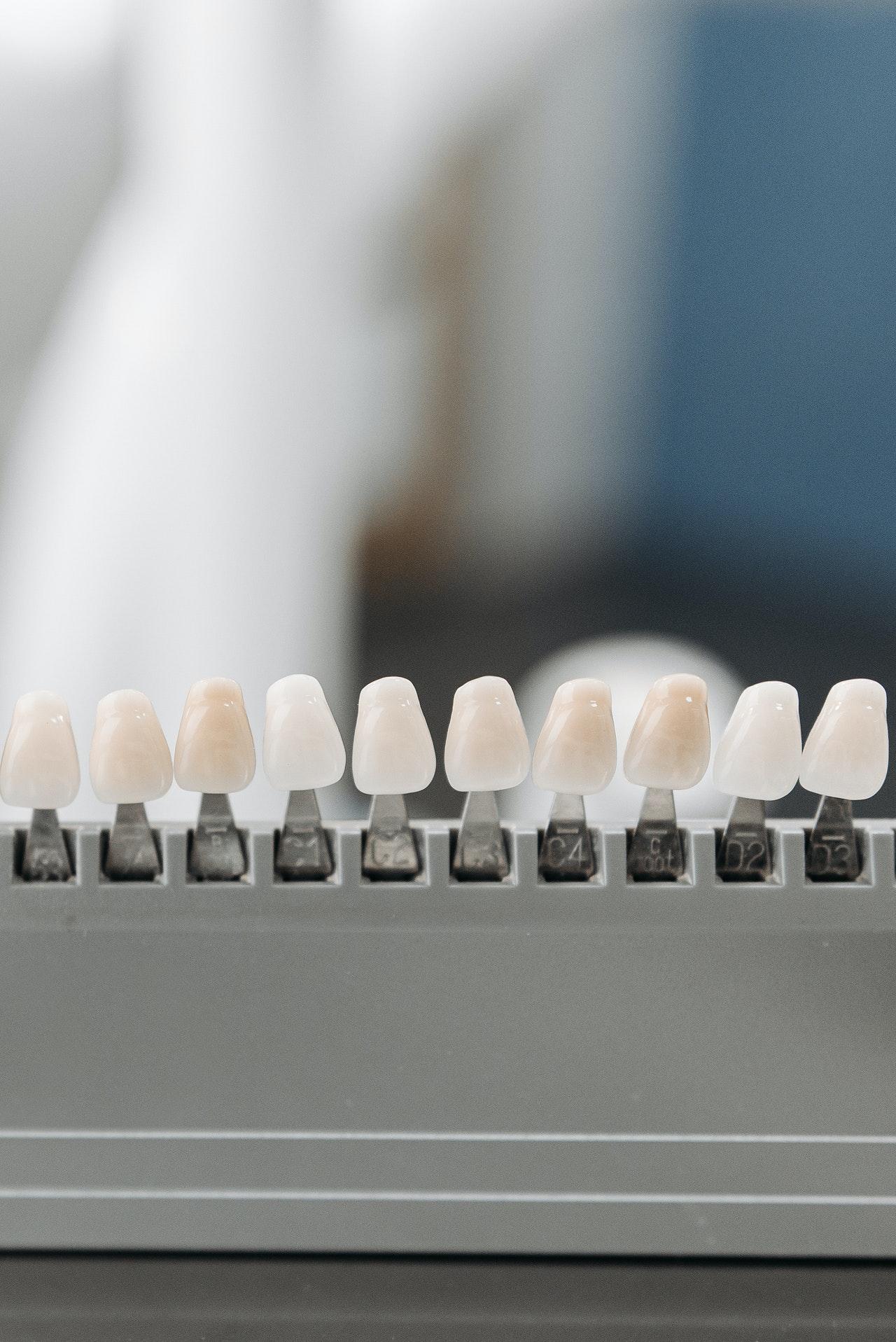 Coronas dentales tipos