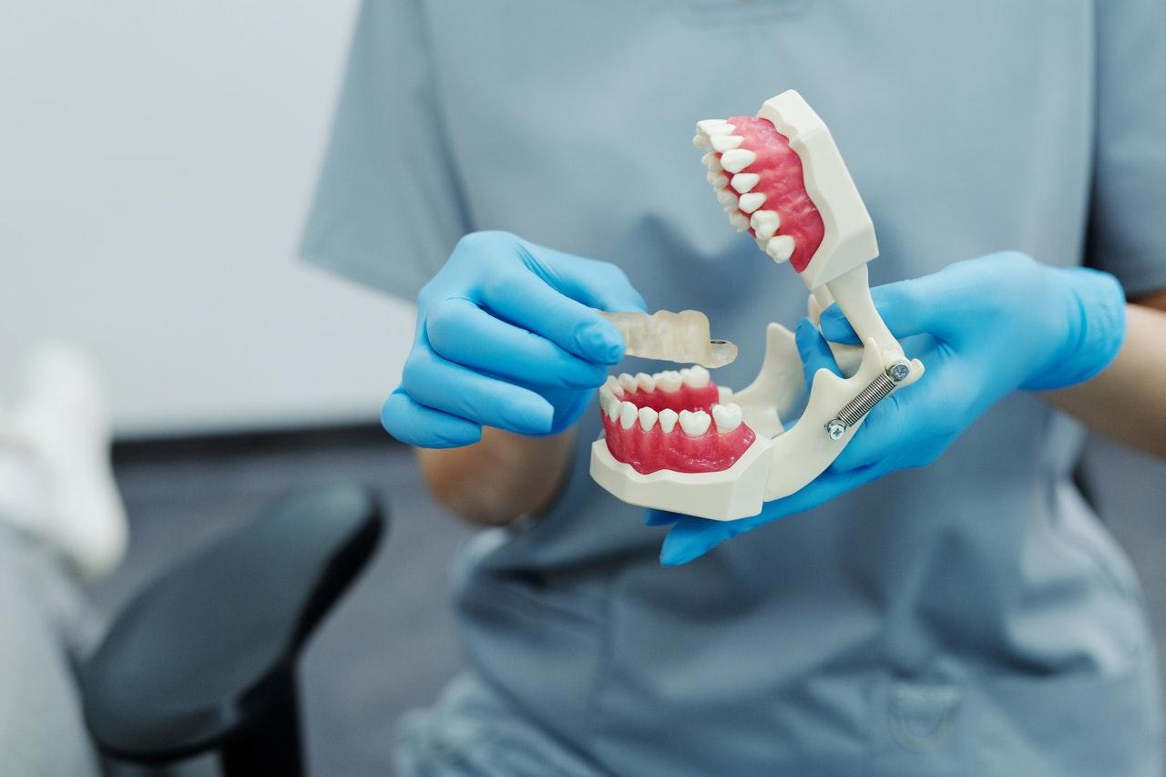 Invisalign Ortodoncia Invisible para Adultos recomendaciones