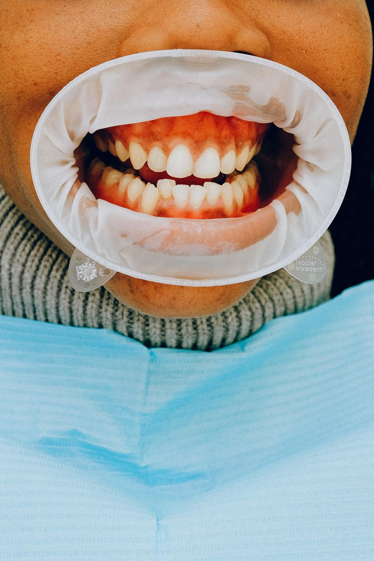 Invisalign en dientes apiñados