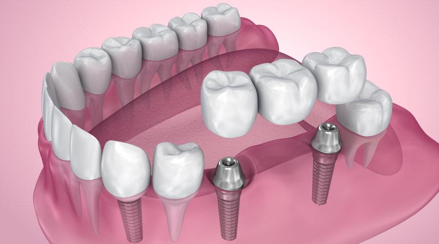 implantes-de-titanio-o-zirconio-cual-es-la-diferencia