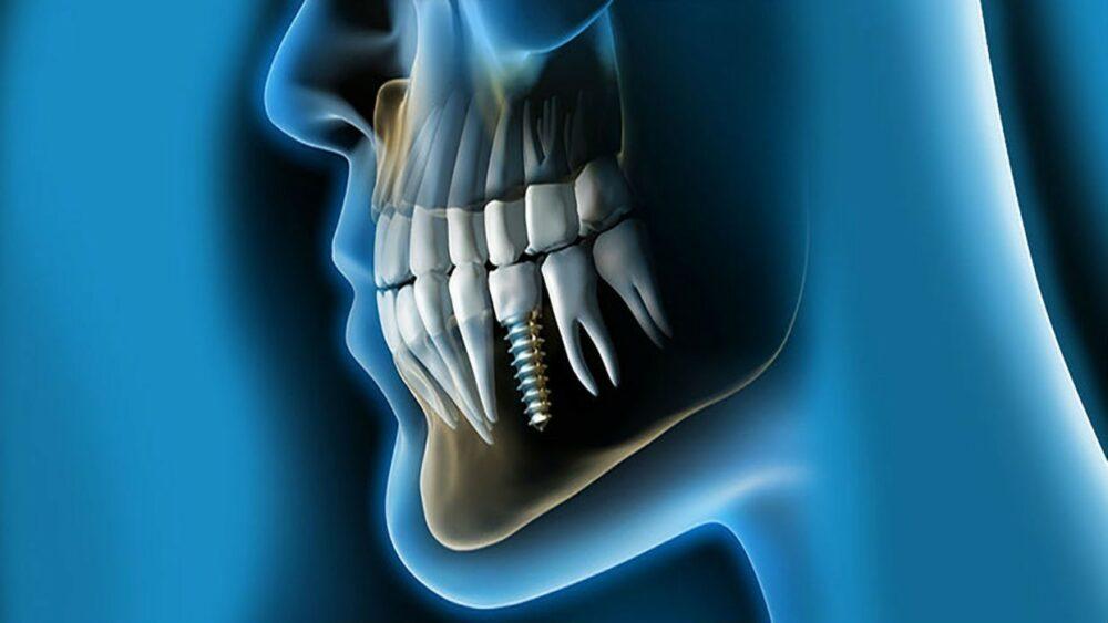 implantes-dentales-en-caso-de-que-no-exista-hueso