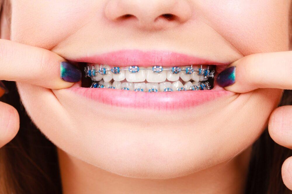 ortodoncia-con-brackets-de-zafiro-o-metalica