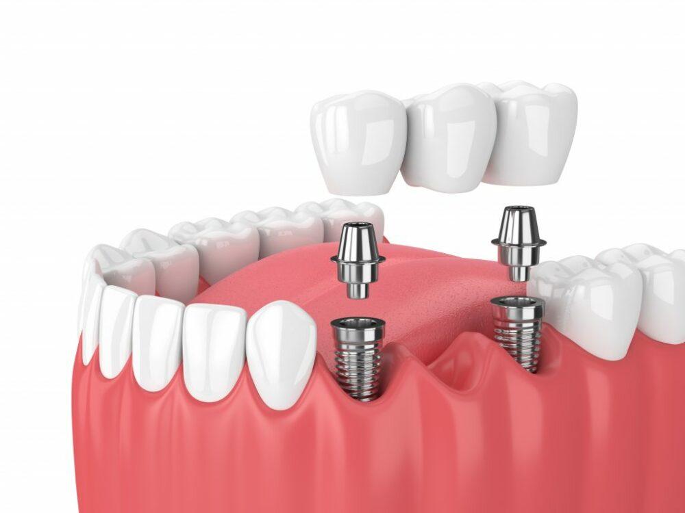 que-son-los-implantes-de-carga-inmediata