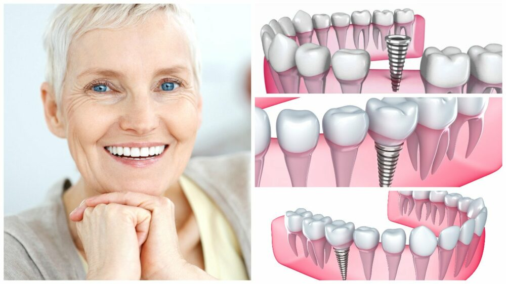 ventajas-de-los-implantes-dentales-frente-a-la-dentadura-postiza