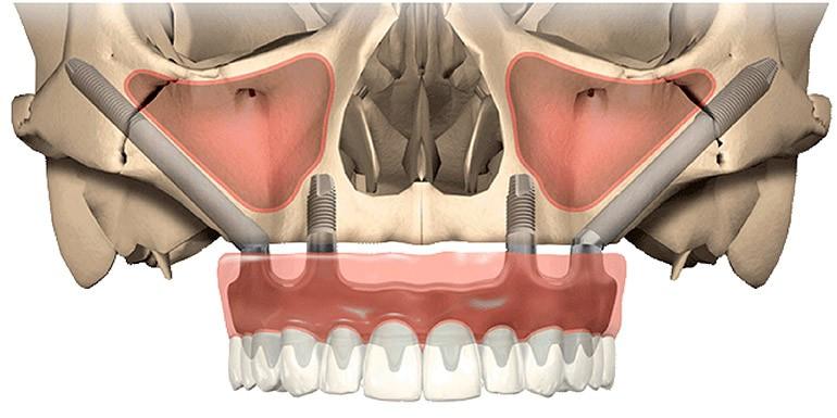 Implantes cigomáticos sinus slot technique