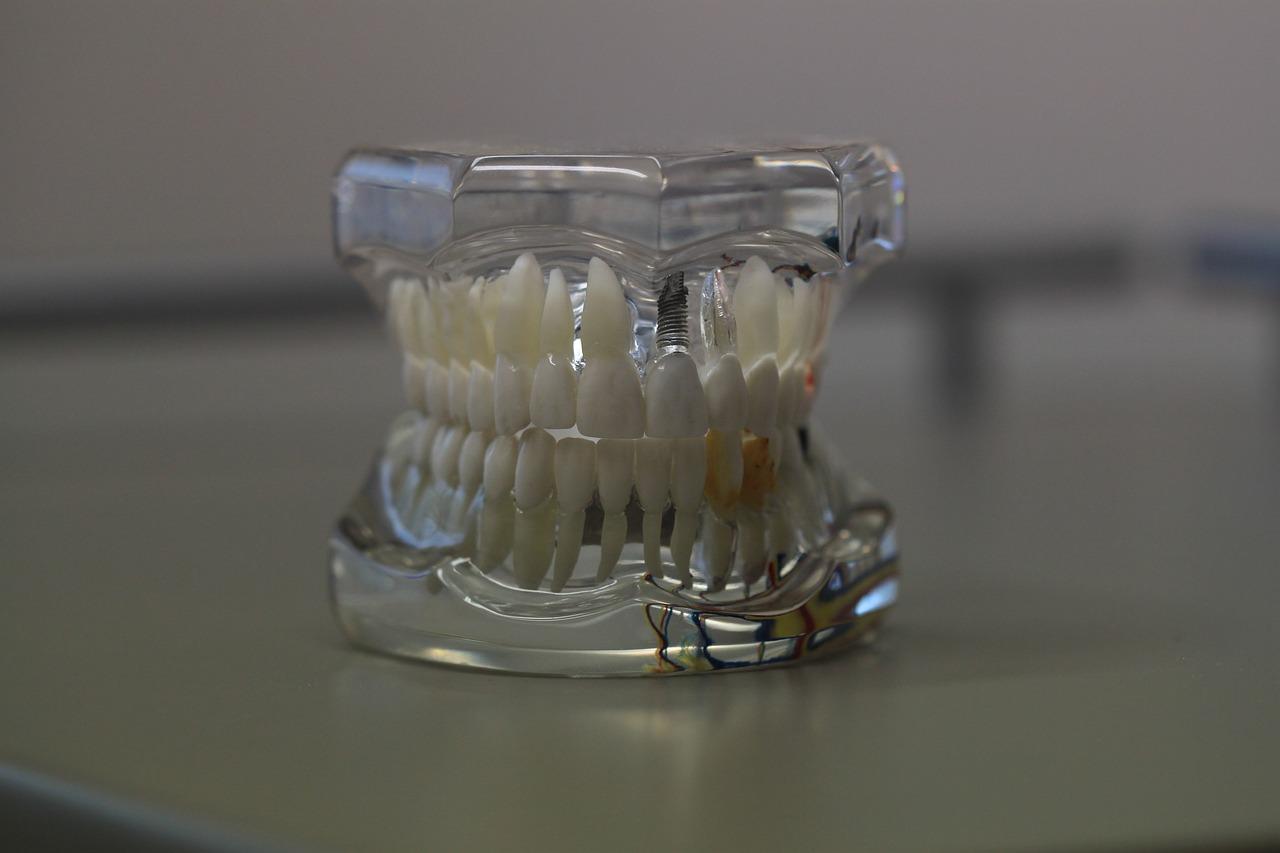 Soluciones para falta de piezas dentales