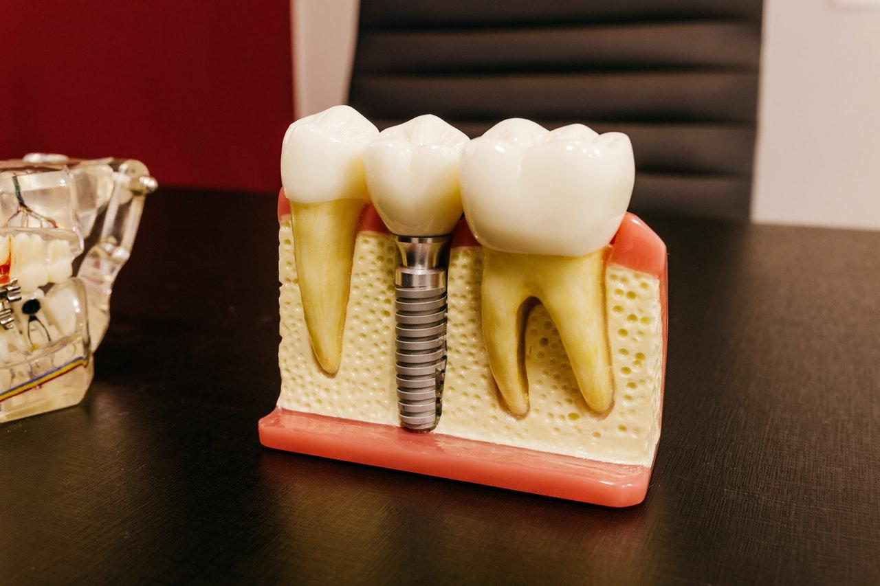 Implantes dentales sin dolor ¿Es posible?