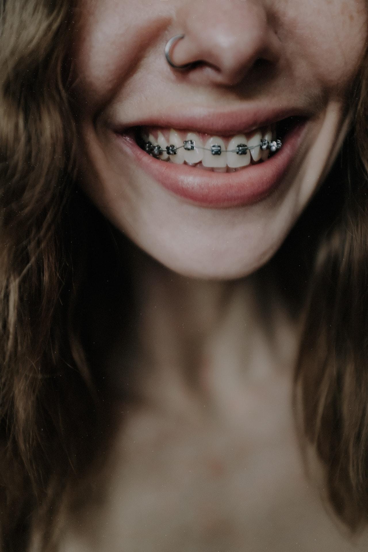 Tipos de ortodoncia y precios brackets metálicos